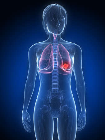 metastase: female anatomy with tumor in lung