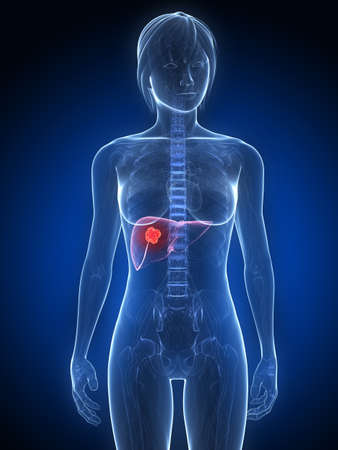 female anatomy with tumor in liver Stock Photo - 7249263