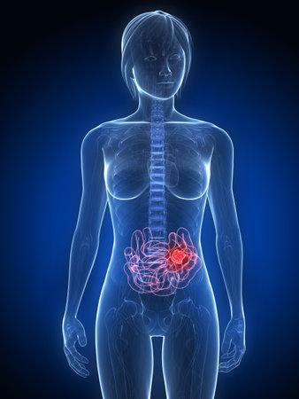 metastase: female anatomy with tumor in small intestines Stock Photo