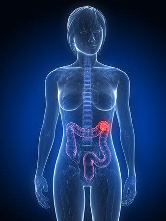colon: anatomia femminile con tumore nel colon
