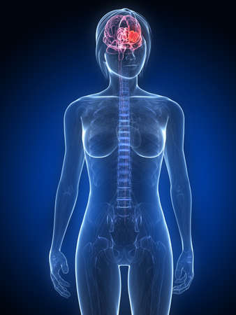 metastase:  female anatomy with tumor in brain