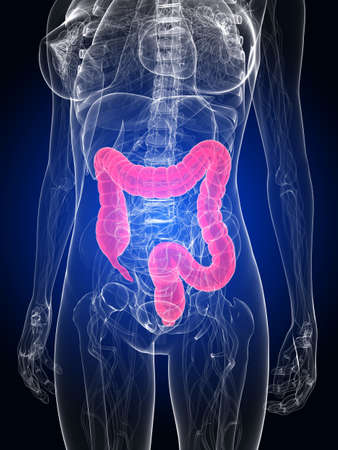 bowel cancer: female anatomy with highlighted colon