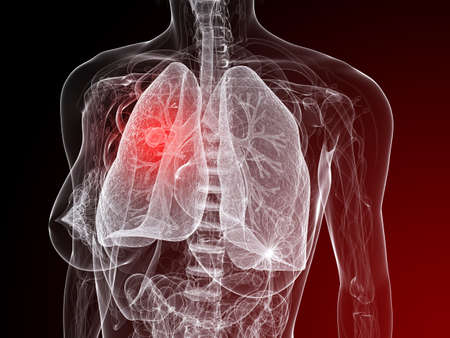 female anatomy with tumor in lung Stock Photo - 7248767