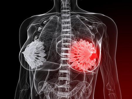 female anatomy with tumor in breast Stock Photo - 7248759