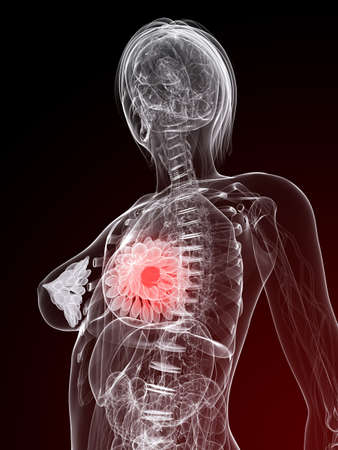 female anatomy with tumor in breast Stock Photo - 7248757