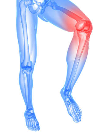 arthritis pain: skeletal leg with highlighted knee joint