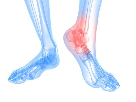 artritis: pie esquel�tico con tobillo resaltado  Foto de archivo