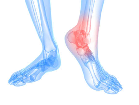 arthritis pain:  skeletal foot with highlighted ankle