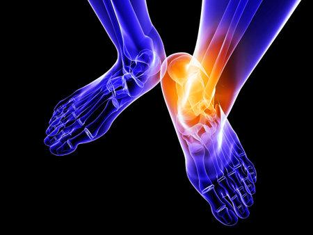 osteoporosis: pie esquel�tico con tobillo resaltado  Foto de archivo