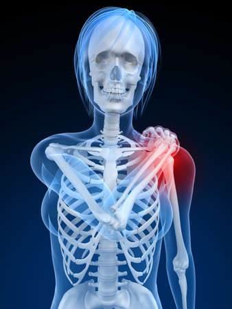 inflammation: female skeleton with highlighted shoulder