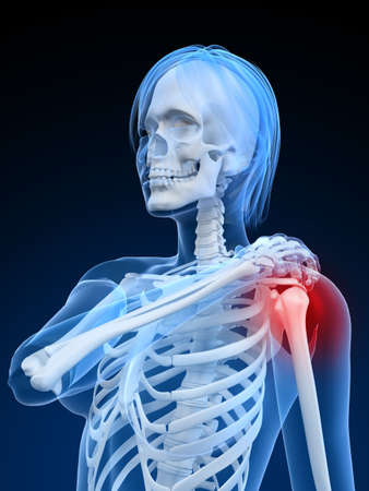 arthritis pain: female skeleton with highlighted shoulder