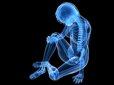 sitting female skeleton with painful knee