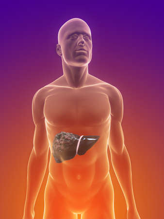 liver cancer: male body with tumor in liver Stock Photo