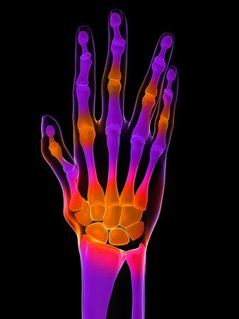 phalanx: painful hand - arthritis