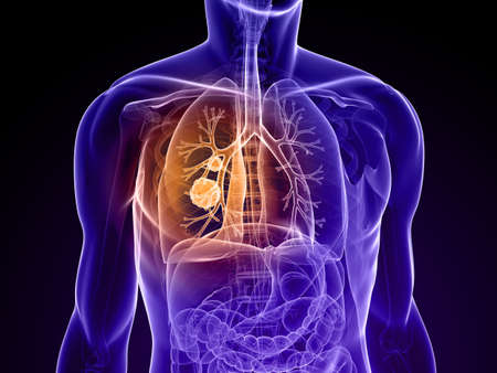 transparent human body with cancer in lung photo
