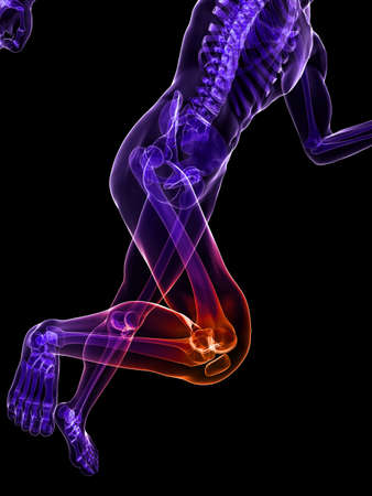 radiation therapy: running skeleton with highlighted knee