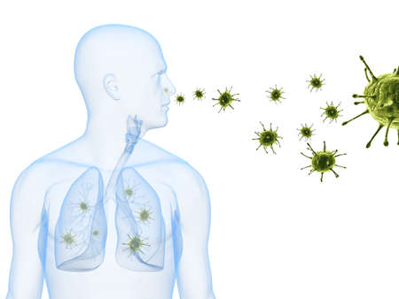lung disease: virus infection