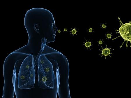virus infection  photo