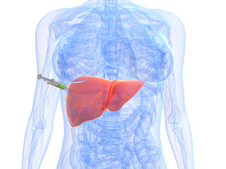 liver cirrhosis: liver injection