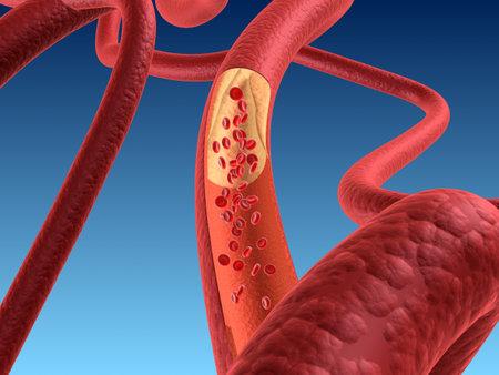 arteriosklerosis Stock Photo - 11090519