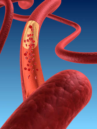 flesh surgery: arteriosklerosis