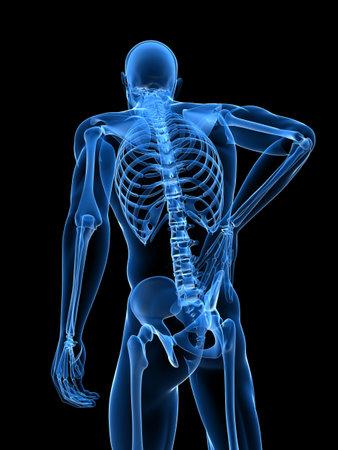 spine x ray: backache illustration  Stock Photo