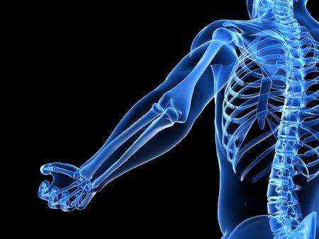 osteoporosis: Ilustraci�n del codo dolorosa Foto de archivo