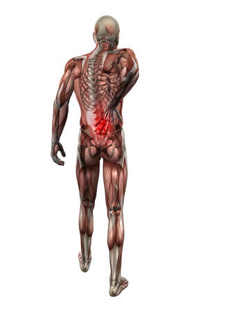 skeletal muscle: painful back illustration  Stock Photo