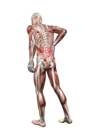 osteoporosis: ilustración de espalda dolorosa Foto de archivo