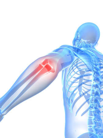 skeletal: painful elbow illustration  Stock Photo