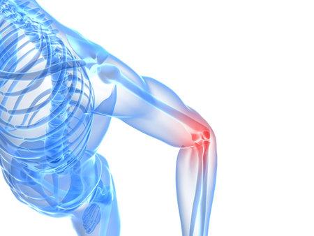 elbows: painful elbow illustration  Stock Photo