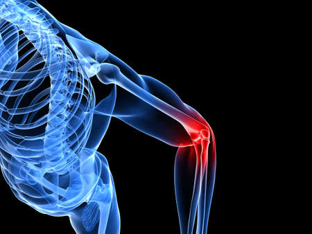 arm pain: painful elbow illustration  Stock Photo
