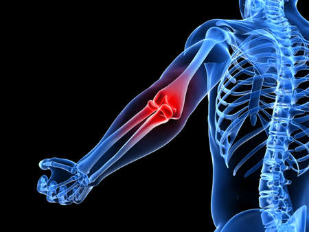 skeleton x ray: painful elbow illustration  Stock Photo
