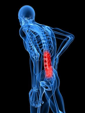 osteoporosis: Ilustración de dolor de espalda  Foto de archivo