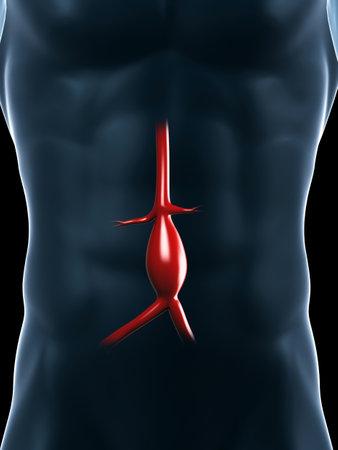 aorta: 3d rendered medical illustration - aneurysm of the aorta