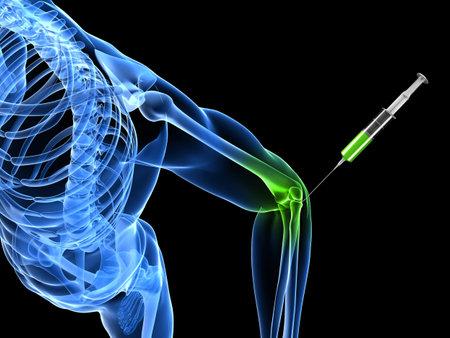 肘関節注射を示す 3 d レンダリングされた図