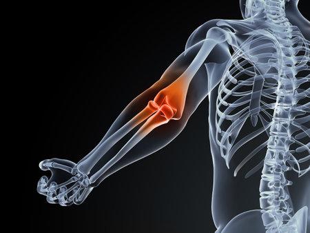 elleboog: 3d teruggegeven medische illustratie van een elleboog bursitis