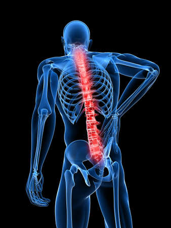 lumbar spine: 3d rendered medical x-ray illustration -  male backache