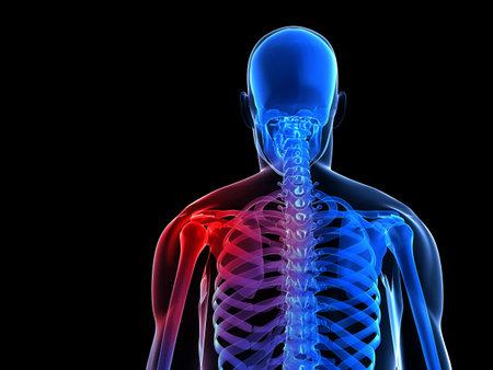 ortopedia: 3d rindió la ilustración de un nuevo esqueleto