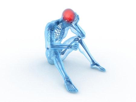 male headache: 3d rindi� la ilustraci�n m�dica de un hombre sentado - dolor de cabeza