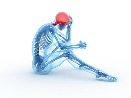 male headache: Ilustraci�n m�dica procesada 3D de un macho de sesi�n - dolor de cabeza