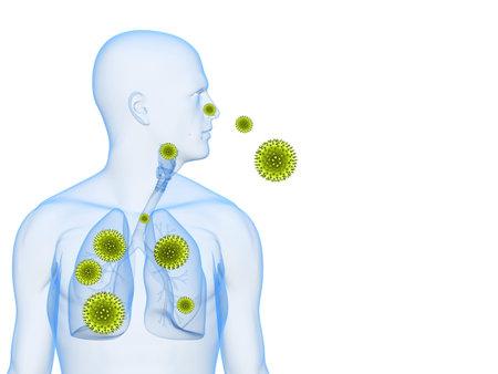 sneeze: pollen allergy illustration  Stock Photo