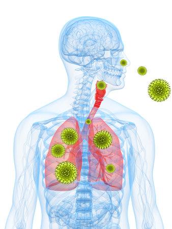 al�rgico: Ilustraci�n de alergia al polen