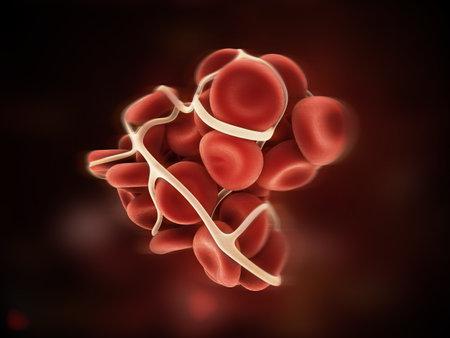 myocardial infarction: blood clot  Stock Photo