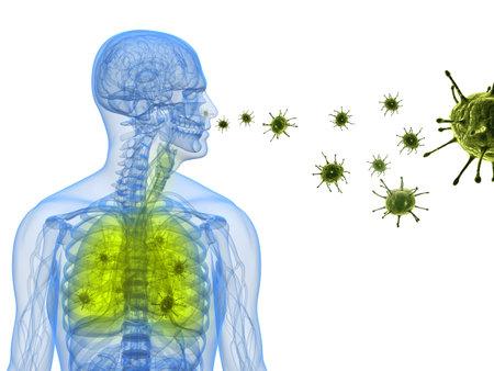 gripe: infecci�n por virus