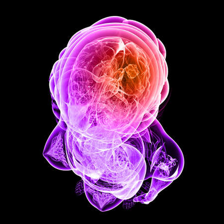 liver cancer: brain cancer illustration  Stock Photo