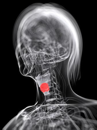 3d rendered medical illustration of larynx cancer Stock Illustration - 12585891