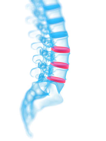 3d rendered, medical illustration of a painful spine Stock Illustration - 12845307