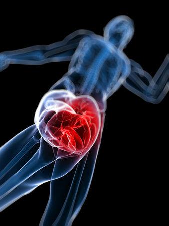 3d rendered, medical illustration of a painful knee  illustration