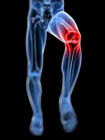 dolor rodillas: 3d rindi�, ilustraci�n m�dica de una rodilla dolorosa
